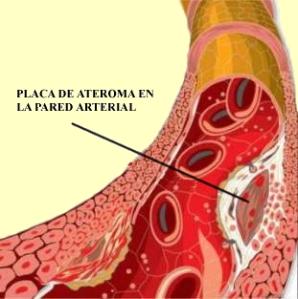 colesterol placa de ateroma
